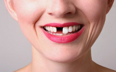Missing Tooth, Dental Implants