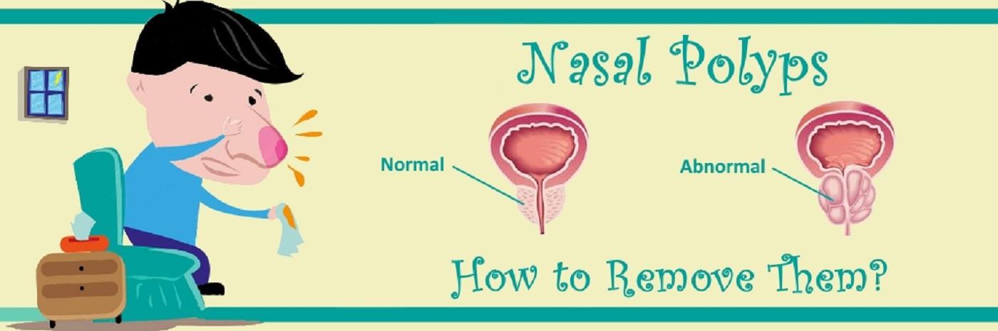 Remove-Nasal-Polyps