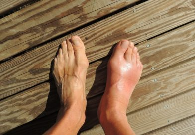 5 Ways To Reduce Ankle Swelling or Edema