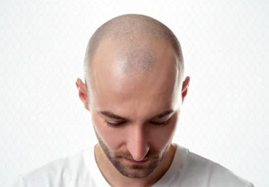 4 Tips Before Hair Transplant Surgery in Gurgaon