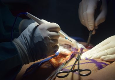 5 Things You Need To Know About Plastic Surgery
